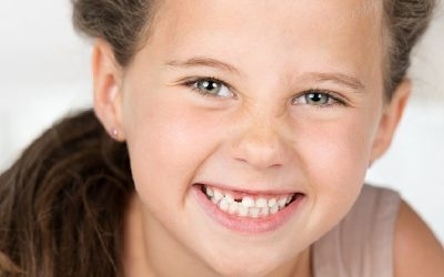 How To Survive The 'Losing First Tooth' Milestone Healthily